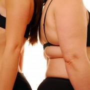 obesidad-salud